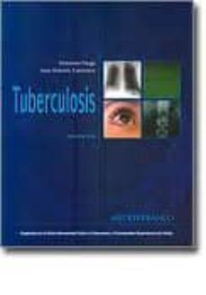 Titantitan.mx Tuberculosis (3ª Ed.) Image