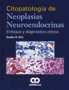 Libros de audio italianos descarga gratuita CITOPATOLOGIA DE NEOPLASIAS NEUROENDOCRINAS: ENFOQUE Y DIAGNOSTICO CLINICO de KINI