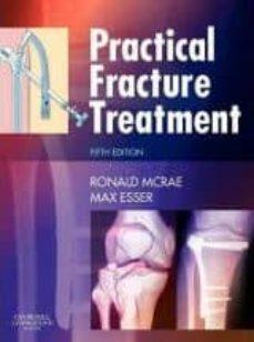 Descarga gratuita de google books PRACTICAL FRACTURE TREATMENT de RONALD MCRAE iBook PDF PDB