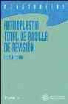 Libros electrónicos descargables ARTROPLASTIA TOTAL DE RODILLA DE REVISION de LEO A. WHITESIDE